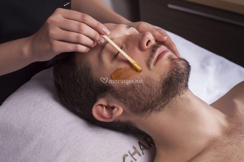 Epilation barbe