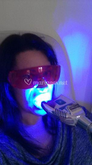 Blanchiment de dents