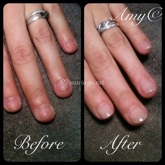 Reconstruction ongles rongés