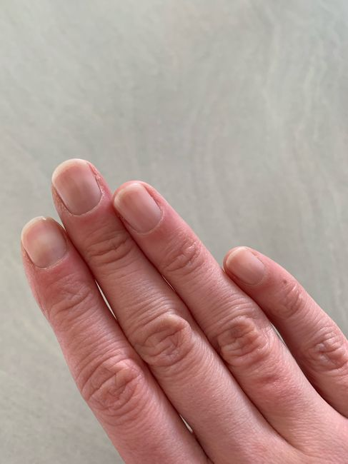 Ongles cassants : solution 2