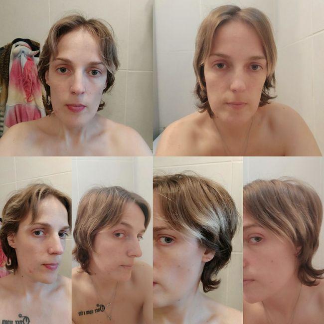 Pousse des cheveux - 1