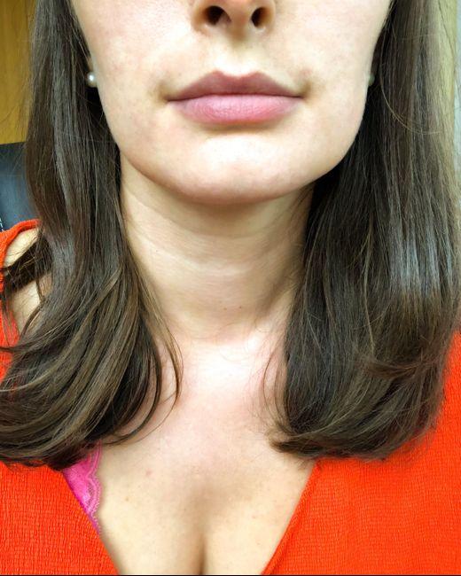 Fin traitement roaccutane, résultats ! 4