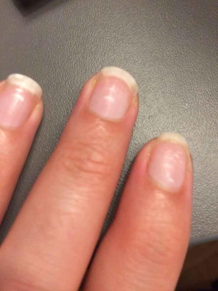 Help ! comment remédier aux tâches blanches sur les ongles ? - 1